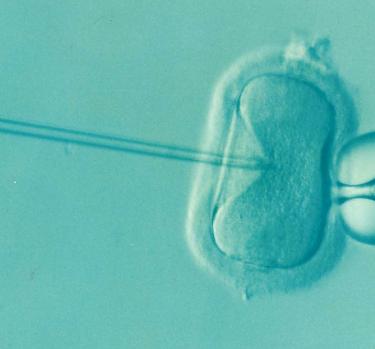 ¿Qué sabes de la fecundación in vitro?