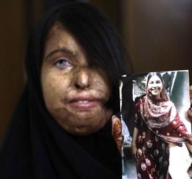 Violencia extrema contra la mujer