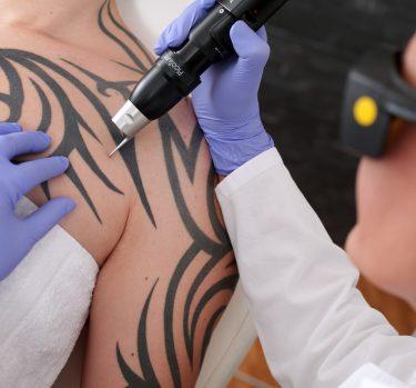 ¿Quieres deshacerte de un tatuaje?