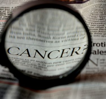 ¿Qué es el cáncer de glándula parótida?